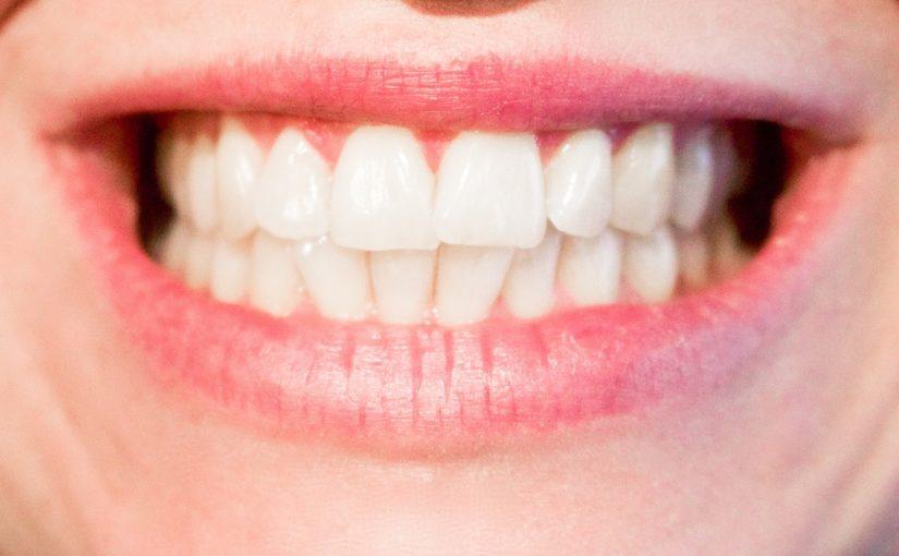 Obecna technologia używana w salonach stomatologii estetycznej może spowodować, że odzyskamy piękny uśmieszek.