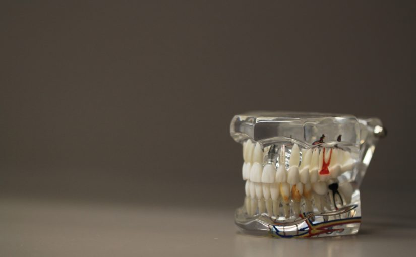 Zła dieta odżywiania się to większe braki w jamie ustnej natomiast także ich utratę